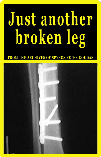 JUST ANOTHER BROKEN LEG-GOUDAS BOOKS